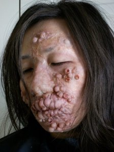 Image Credit: http://diseasespictures.com/wp-content/ uploads/2012/11/Leprosy-9.jpg